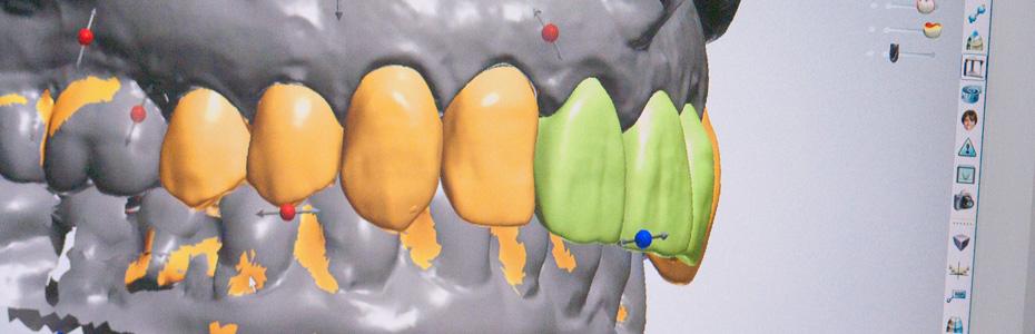 duitsland tanden bleken